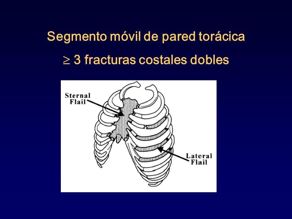 Segmento móvil de pared torácica 3 fracturas costales dobles