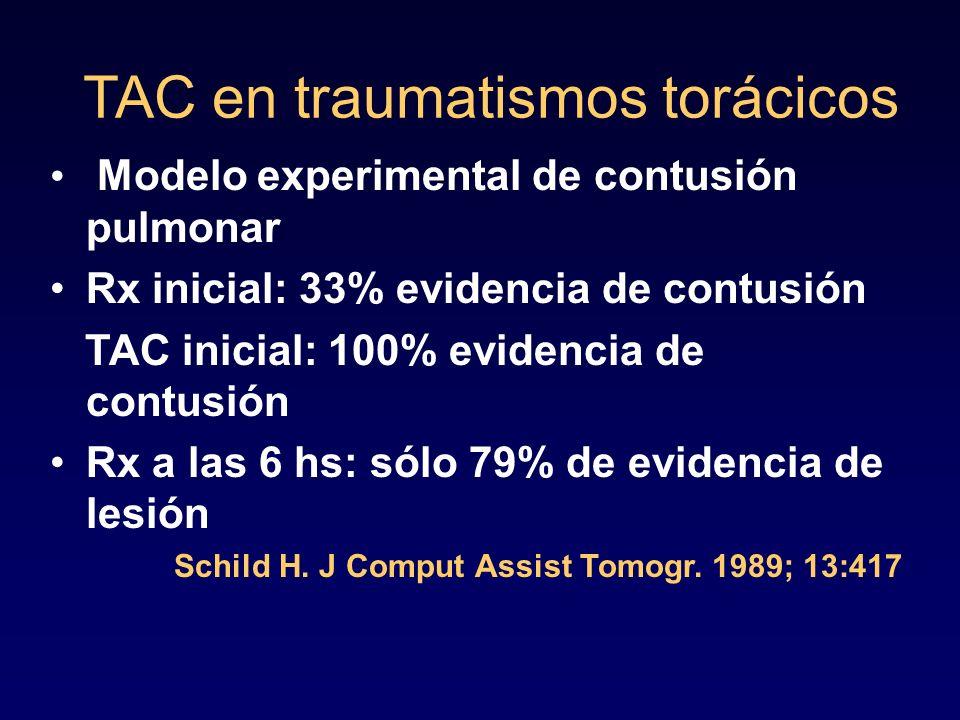 TAC en traumatismos torácicos Modelo experimental de contusión pulmonar Rx inicial: 33% evidencia de contusión TAC inicial: 100% evidencia de contusió
