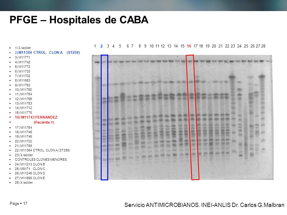 Page 17 PFGE – Hospitales de CABA 1) ladder 2) M11384 CTROL. CLON A (ST258) 3) M11771 4) M11742 5) M11772 6) M11733 7) M11702 8) M11683 9) M11793 10)