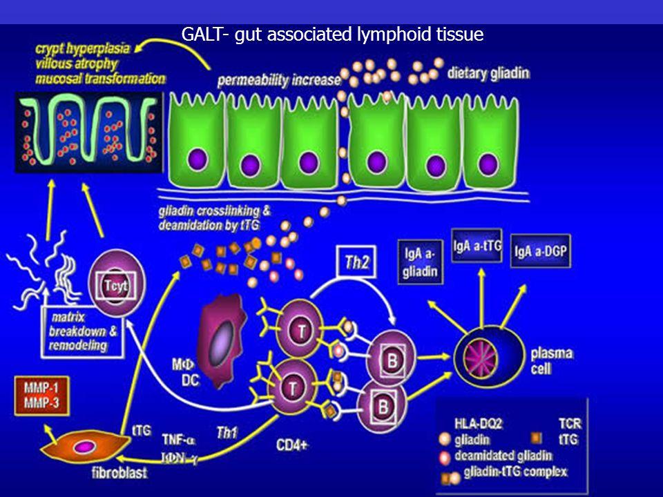 GALT- gut associated lymphoid tissue