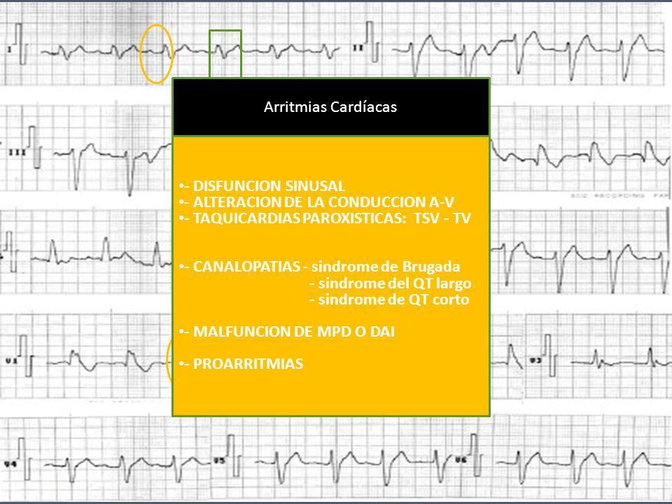 11 - DISFUNCION SINUSAL - ALTERACION DE LA CONDUCCION A-V - TAQUICARDIAS PAROXISTICAS: TSV - TV - CANALOPATIAS - sindrome de Brugada - sindrome del QT