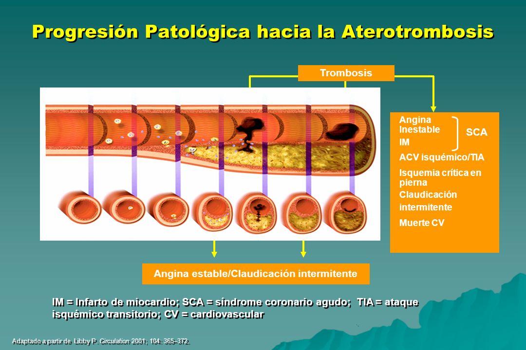 Angina Inestable IM ACV isquémico/TIA Isquemia crítica en pierna Claudicación intermitente Muerte CV SCA Atherosclerosis Angina estable/Claudicación i