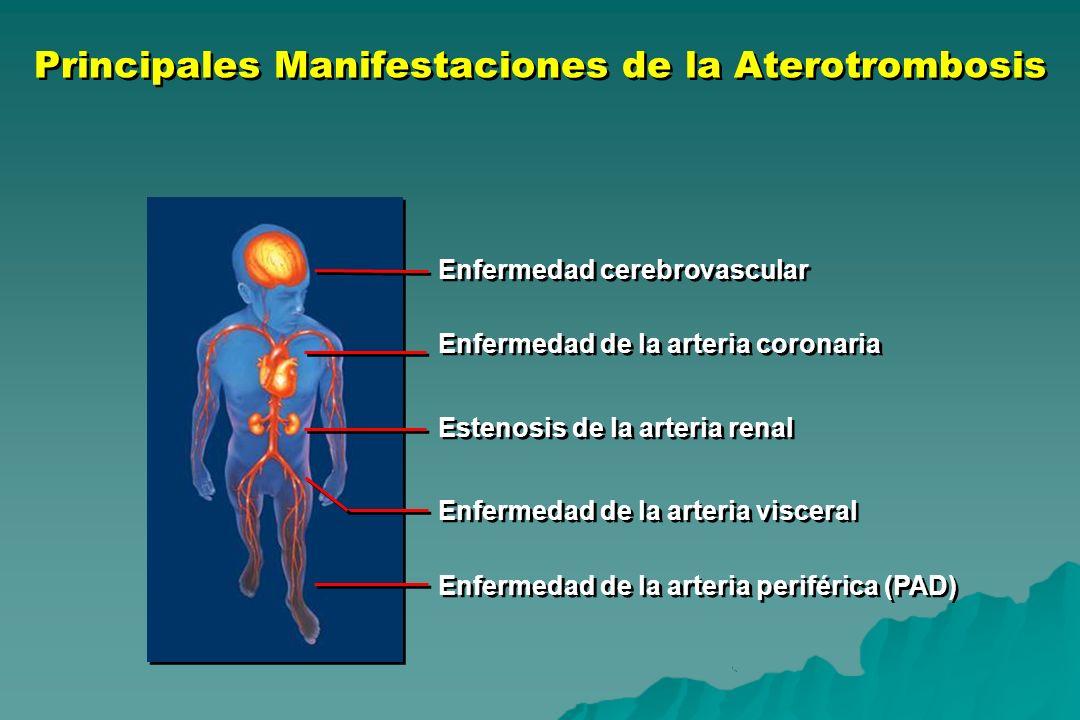 Enfermedad cerebrovascular Enfermedad de la arteria coronaria Estenosis de la arteria renal Enfermedad de la arteria visceral Enfermedad de la arteria