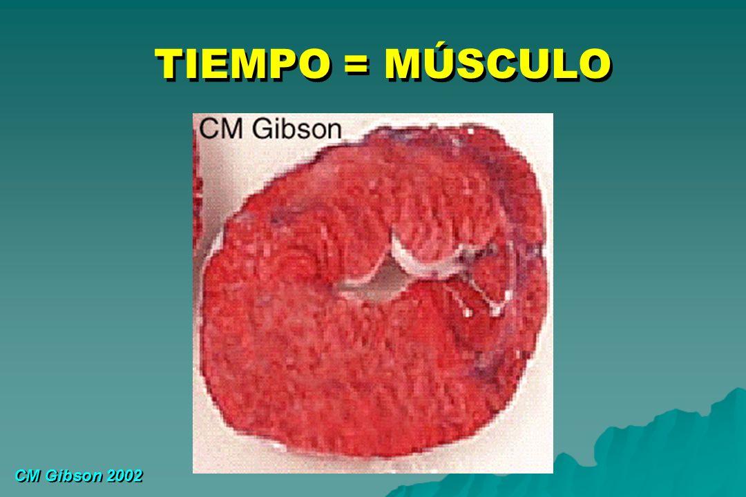TIEMPO = MÚSCULO CM Gibson 2002