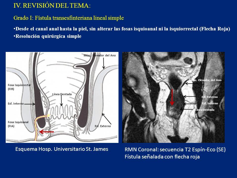 IV. REVISIÓN DEL TEMA: Desde el canal anal hasta la piel, sin alterar las fosas isquioanal ni la isquiorrectal (Flecha Roja) Resolución quirúrgica sim