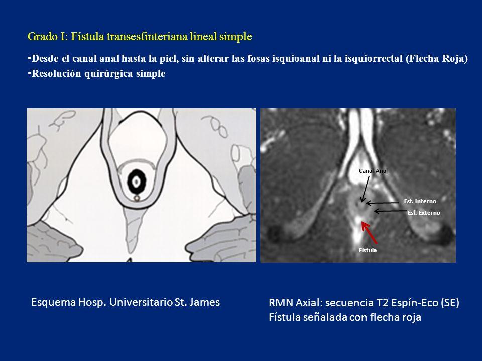Fístula interesfinteriana con morfología en herradura (flecha negra) Limitada por detrás por el esfínter externo.