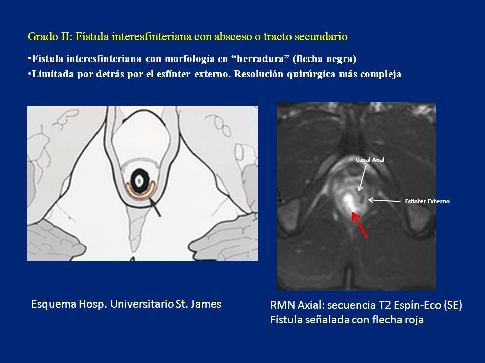 Grado III: Fístula transesfinteriana Fístula que cruza la fosa isquiorrectal, comprometiendo a las dos capas del complejo esfinteriano (interno y externo) Absceso Esfínter Interno Esfínter Externo Fístula Esquema Hosp.