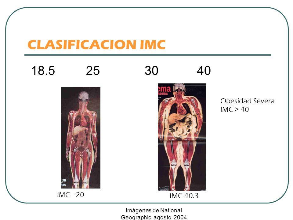 CLASIFICACION IMC 18.525 30 40 IMC= 20 IMC 40.3 Obesidad Severa IMC > 40 Imágenes de National Geographic, agosto 2004