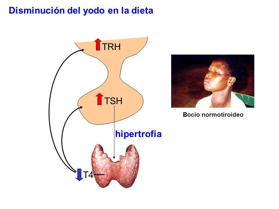 TRH T4 TSH hipertrofia Bocio normotiroideo Disminución del yodo en la dieta