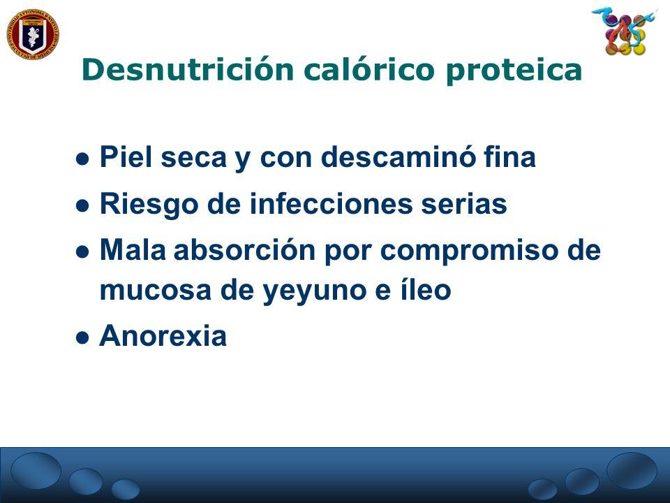 Desnutrición calórico proteica Piel seca y con descaminó fina Riesgo de infecciones serias Mala absorción por compromiso de mucosa de yeyuno e íleo An