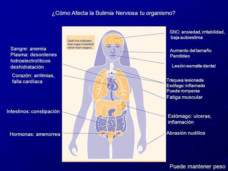 ¿Cómo Afecta la Bulimia Nerviosa tu organismo? SNC: ansiedad, irritabilidad, baja autoestima Aumento del tamaño Parotídeo Lesión esmalte dental Tráque