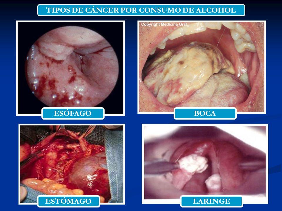 TIPOS DE CÁNCER POR CONSUMO DE ALCOHOL ESÓFAGOBOCA ESTÓMAGOLARINGE
