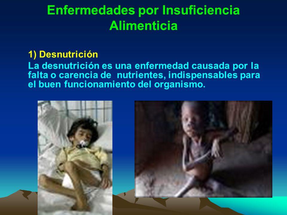 Enfermedades por Insuficiencia Alimenticia 1) Desnutrición La desnutrición es una enfermedad causada por la falta o carencia de nutrientes, indispensa