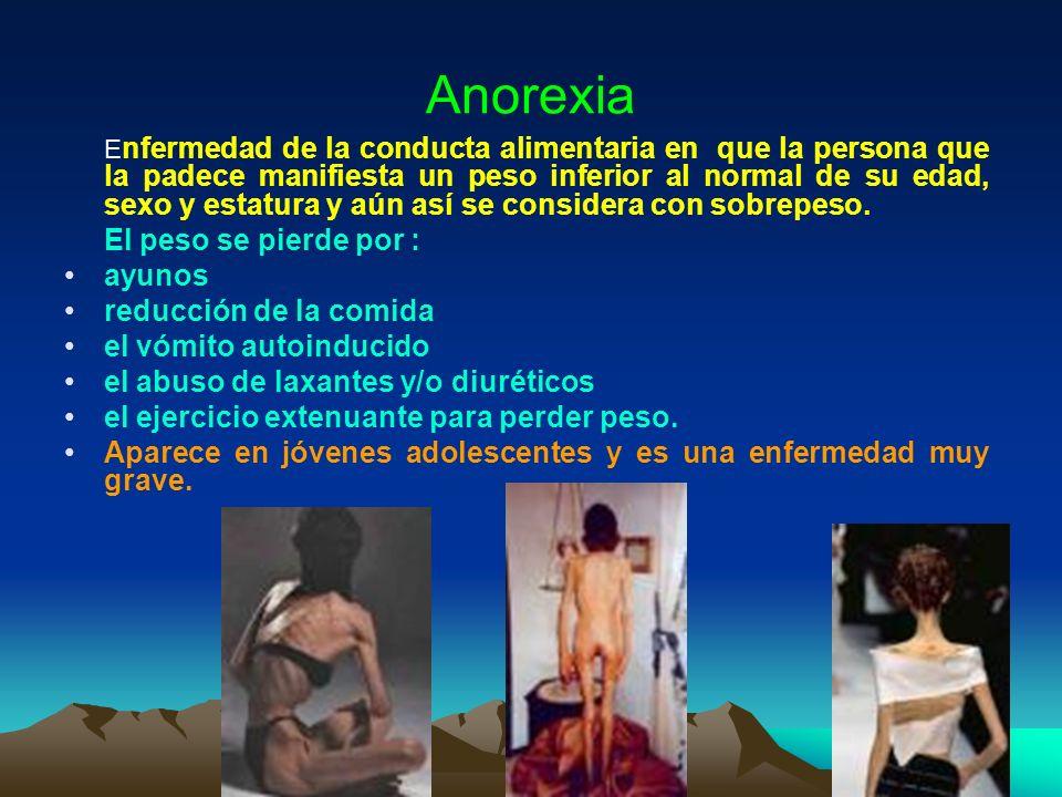 Anorexia E nfermedad de la conducta alimentaria en que la persona que la padece manifiesta un peso inferior al normal de su edad, sexo y estatura y aú
