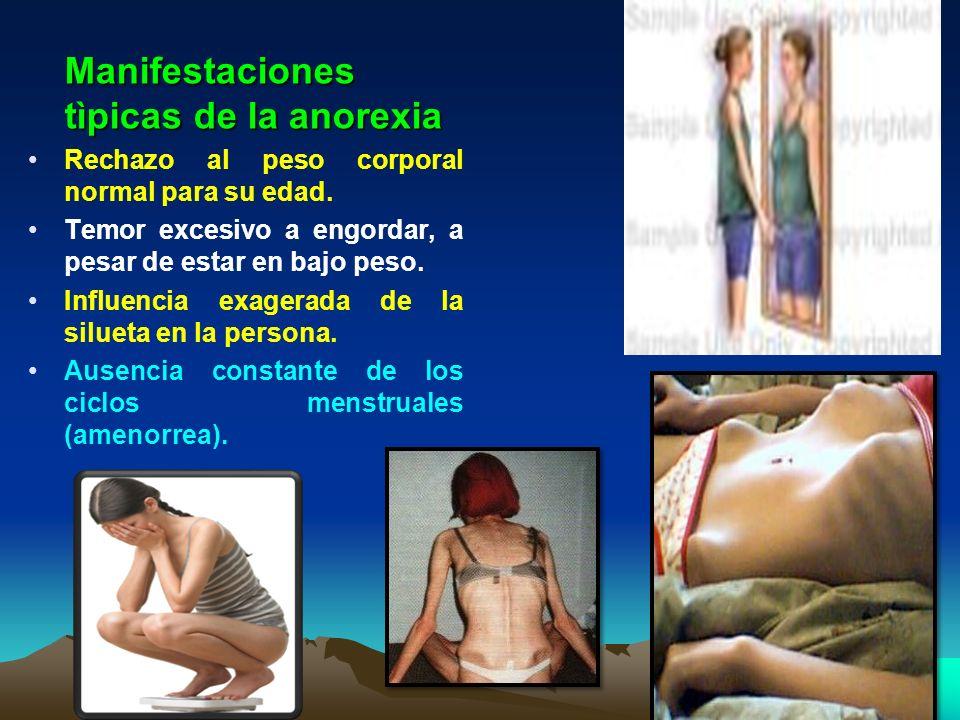 Manifestaciones tìpicas de la anorexia Rechazo al peso corporal normal para su edad. Temor excesivo a engordar, a pesar de estar en bajo peso. Influen