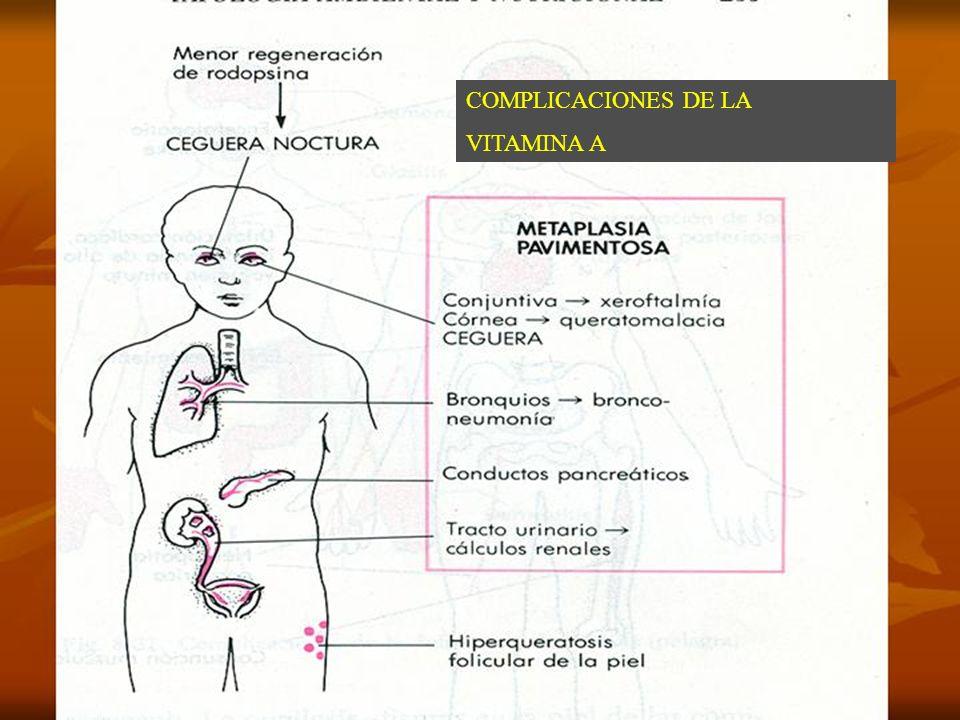 COMPLICACIONES DE DEFICIT DE VITAMINA A COMPLICACIONES DE LA VITAMINA A