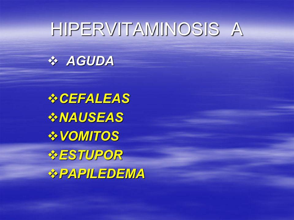 HIPERVITAMINOSIS A AGUDA AGUDA CEFALEAS CEFALEAS NAUSEAS NAUSEAS VOMITOS VOMITOS ESTUPOR ESTUPOR PAPILEDEMA PAPILEDEMA