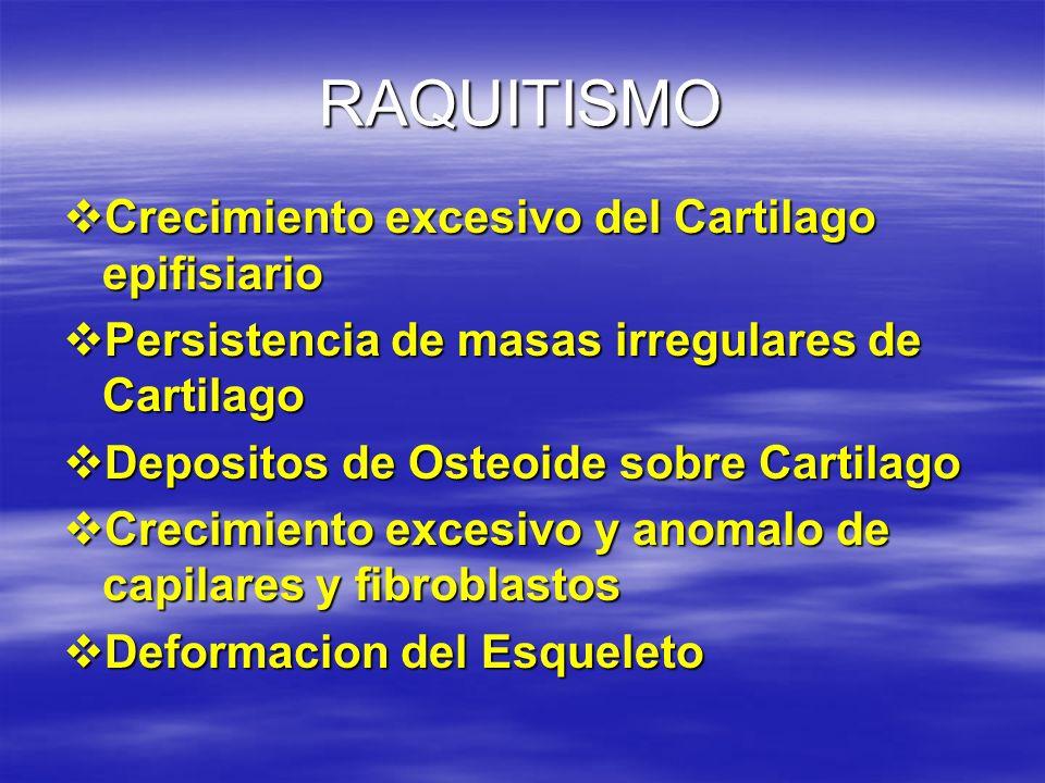 RAQUITISMO Crecimiento excesivo del Cartilago epifisiario Crecimiento excesivo del Cartilago epifisiario Persistencia de masas irregulares de Cartilag