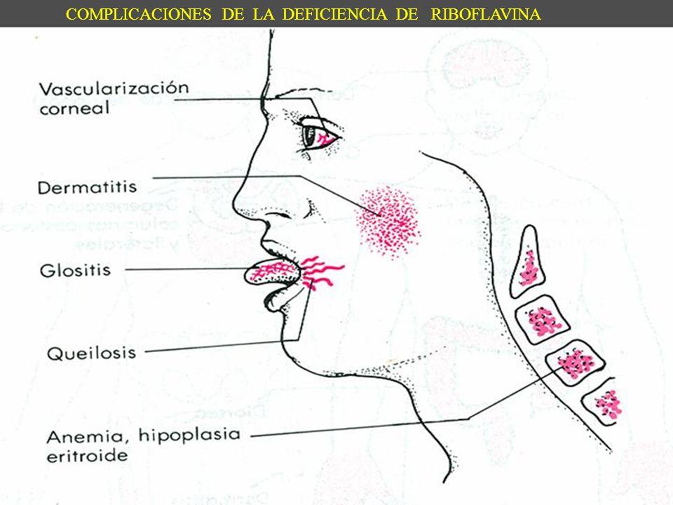 COMPLICACIONES DE LA DEFICIENCIA DE RIBOFLAVINA