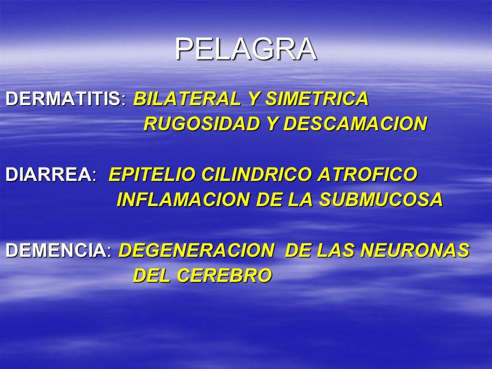 PELAGRA DERMATITIS: BILATERAL Y SIMETRICA RUGOSIDAD Y DESCAMACION RUGOSIDAD Y DESCAMACION DIARREA: EPITELIO CILINDRICO ATROFICO INFLAMACION DE LA SUBM