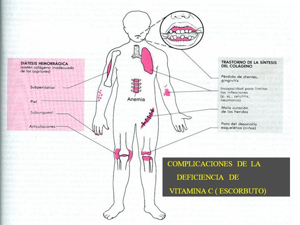 COMPLICACIONES DE LA DEFICIENCIA DE VITAMINA C ( ESCORBUTO)