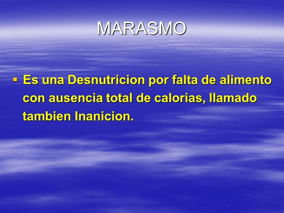 MARASMO Es una Desnutricion por falta de alimento Es una Desnutricion por falta de alimento con ausencia total de calorias, llamado con ausencia total