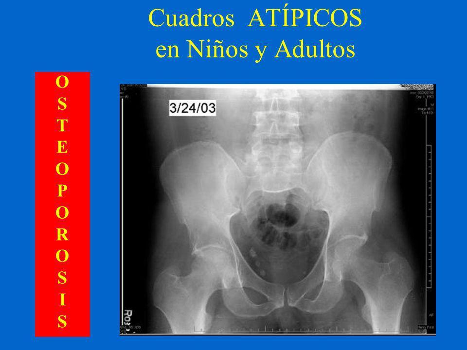 Cuadros ATÍPICOS en Niños y Adultos OSTEOPOROSISOSTEOPOROSIS