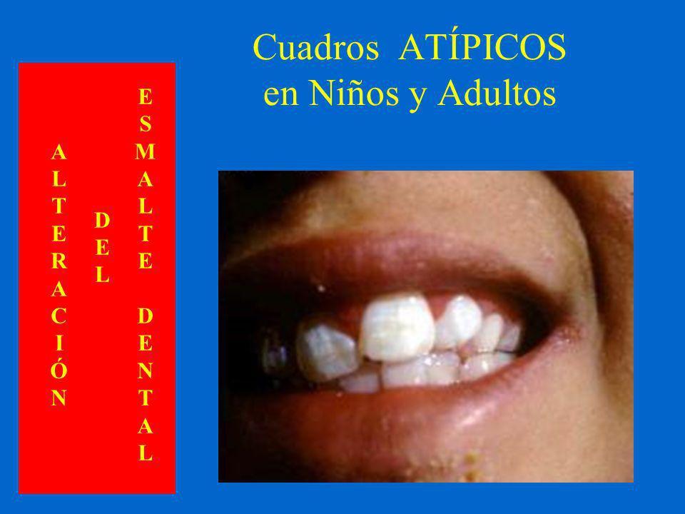 Cuadros ATÍPICOS en Niños y Adultos ALTERACIÓNALTERACIÓN DELDEL ESMALTEDENTALESMALTEDENTAL