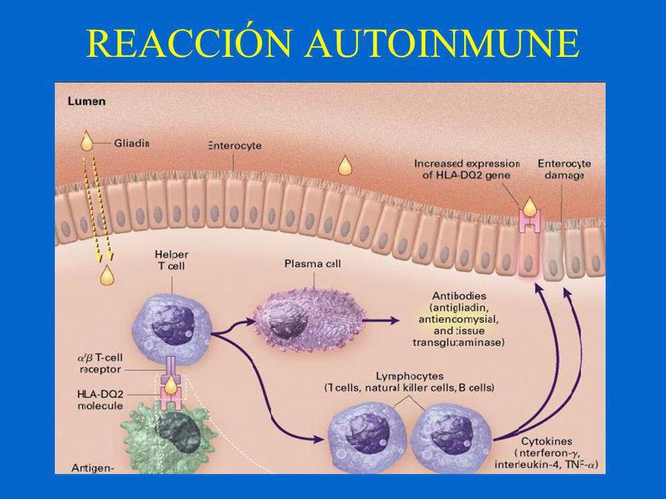 Prevalencia en Grupos de Riesgo Parientes de primer grado (10%) Síndrome de Down (12%) Enfermedad tiroidea autoinmune (5%) Anemia Ferropénica Refractaria (5%) Diabetes mellitus tipo 1 (5-10%) Dermatitis Herpetiforme (100%) Epilepsia con calcificaciones Intracraneales (72%) Síndrome de intestino irritable (3-11%) Ataxia Autoinmune(> 40%) Déficit IgA (8%) DBT