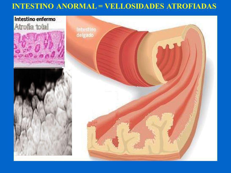 Síntomas TÍPICOS en Adultos Diarrea crónica (+frec) Pérdida de peso Distensión abdominal Dolor Abdominal Recurrente Decaimiento y malestar