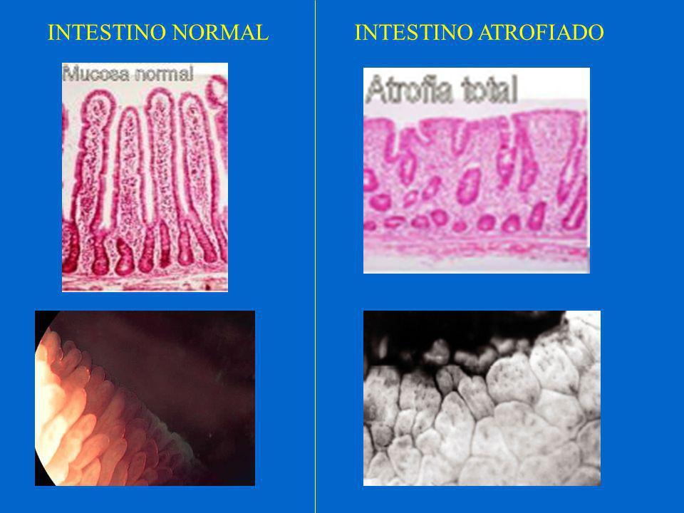 BIOPSIA Biopsia por aspiración (cápsula de Crosby) Biopsia por Video Gastro-Duodenoscopía (VGDC)