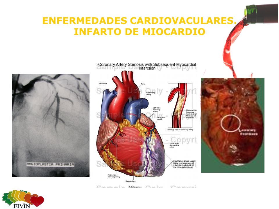 ENFERMEDADES CARDIOVACULARES. INFARTO DE MIOCARDIO