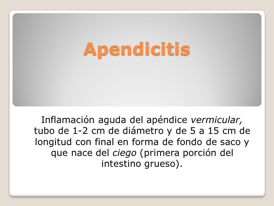 Apendicitis Inflamación aguda del apéndice vermicular, tubo de 1-2 cm de diámetro y de 5 a 15 cm de longitud con final en forma de fondo de saco y que