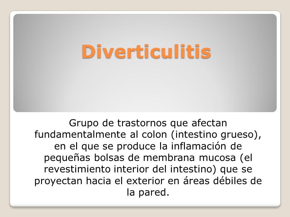 Diverticulitis Grupo de trastornos que afectan fundamentalmente al colon (intestino grueso), en el que se produce la inflamación de pequeñas bolsas de