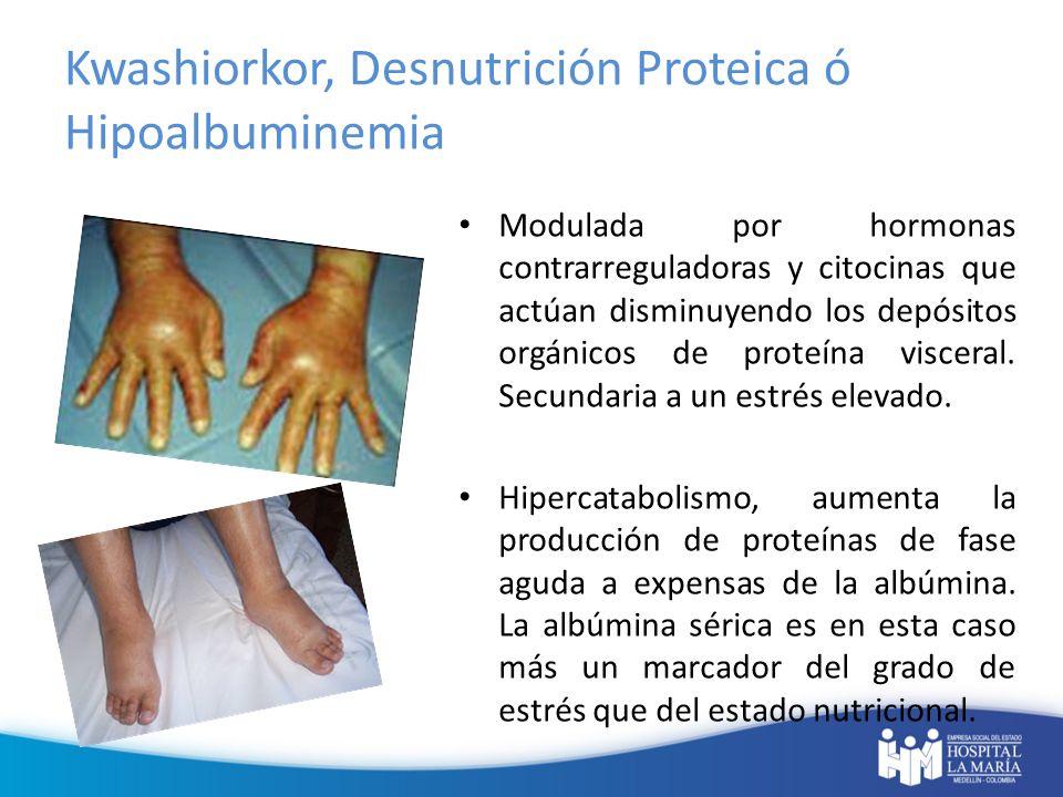 Mixta: Muy frecuente en el paciente hospitalizado, suele darse en aquellos sujetos previamente desnutridos que sufren un proceso agudo intercurrente provocando una desnutrición calórico- proteica.