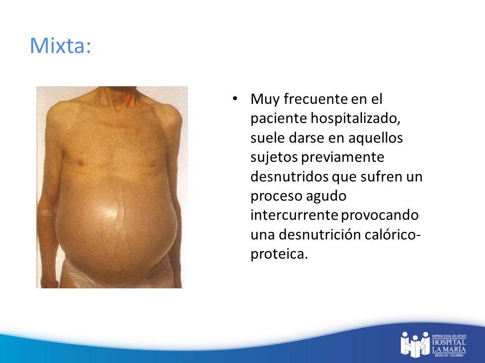 Mixta: Muy frecuente en el paciente hospitalizado, suele darse en aquellos sujetos previamente desnutridos que sufren un proceso agudo intercurrente p