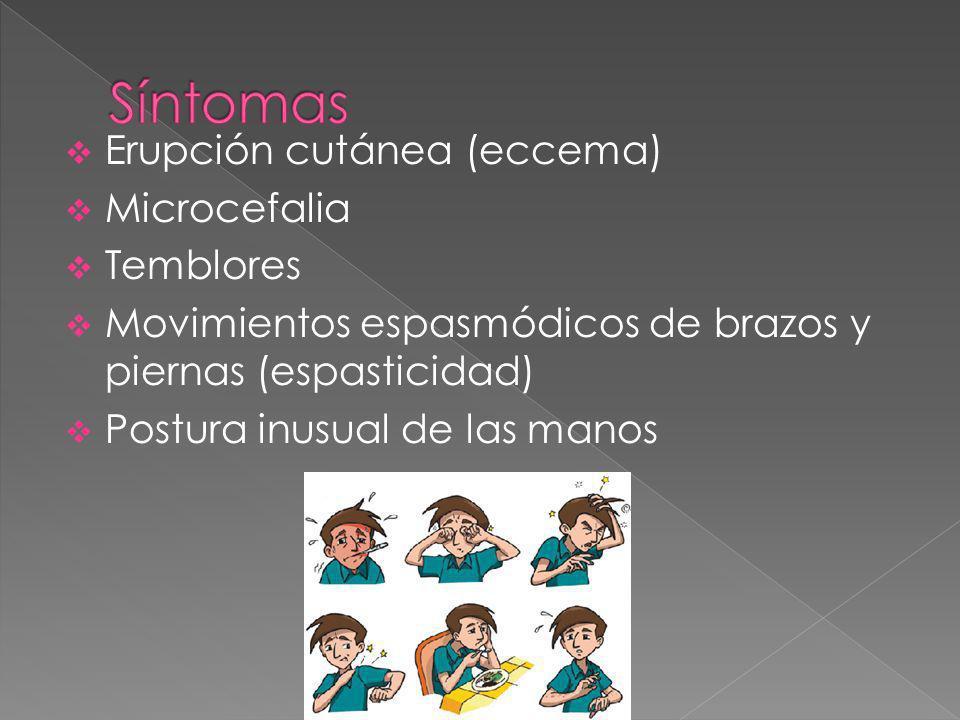 Erupción cutánea (eccema) Microcefalia Temblores Movimientos espasmódicos de brazos y piernas (espasticidad) Postura inusual de las manos