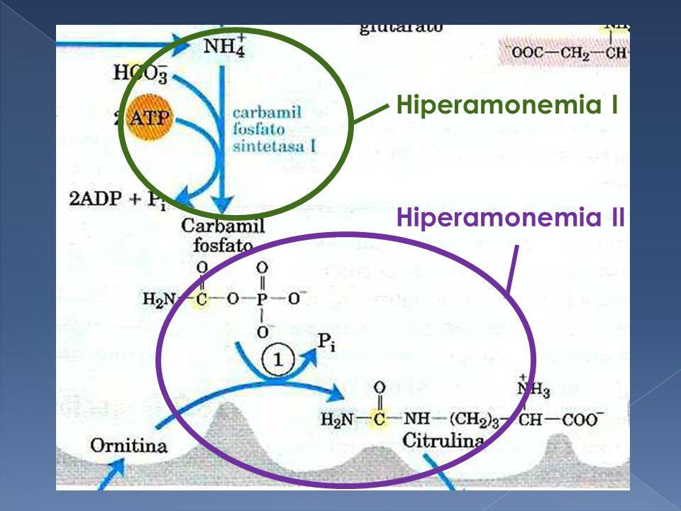 Hiperamonemia I Hiperamonemia II