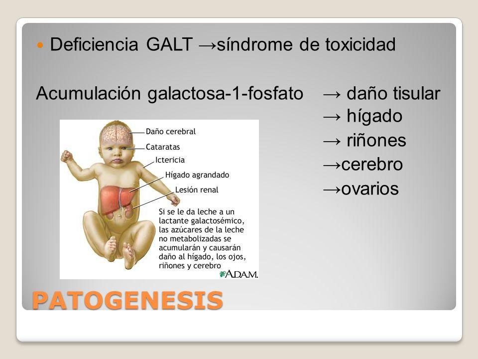 PATOGENESIS Deficiencia GALT síndrome de toxicidad Acumulación galactosa-1-fosfato daño tisular hígado riñones cerebro ovarios