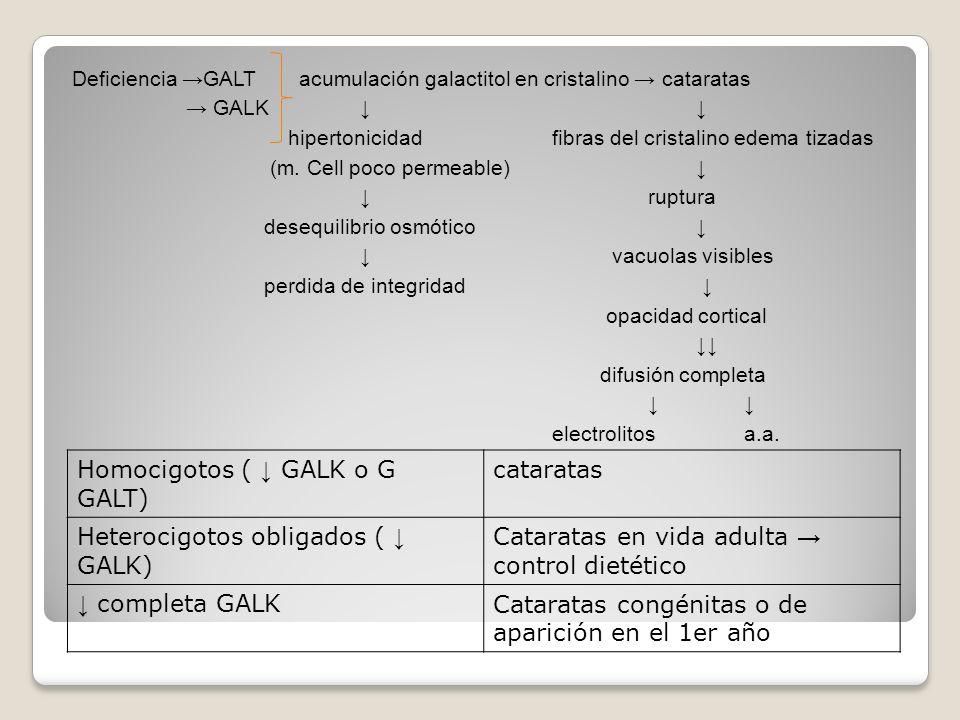 Deficiencia GALT acumulación galactitol en cristalino cataratas GALK hipertonicidad fibras del cristalino edema tizadas (m. Cell poco permeable) ruptu