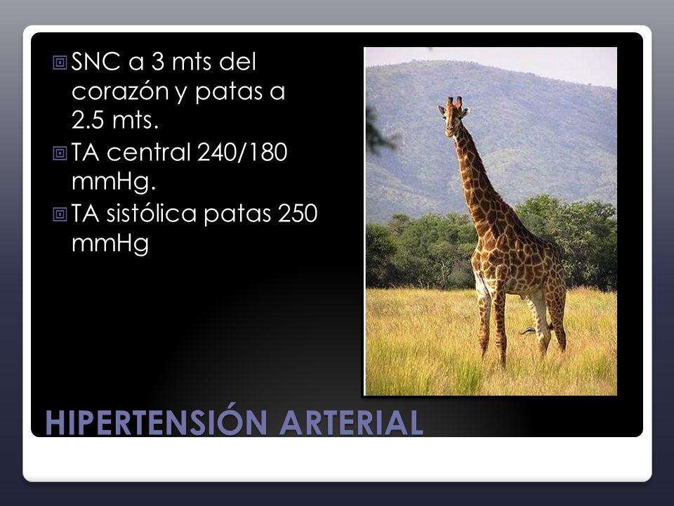 HIPERTENSIÓN ARTERIAL SNC a 3 mts del corazón y patas a 2.5 mts. TA central 240/180 mmHg. TA sistólica patas 250 mmHg