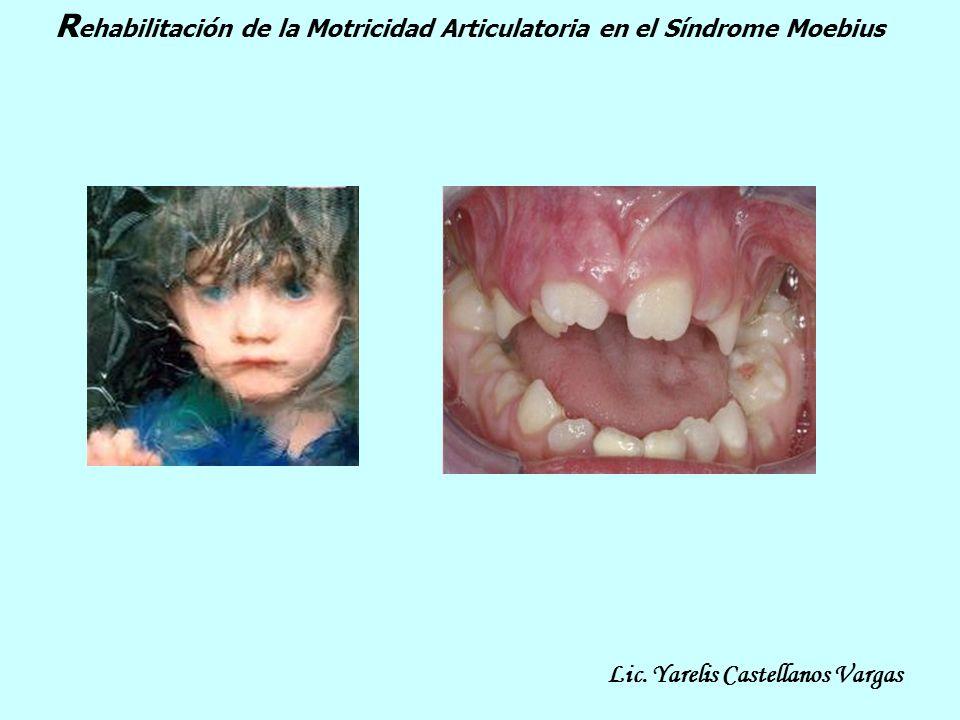 R ehabilitación de la Motricidad Articulatoria en el Síndrome Moebius Lic. Yarelis Castellanos Vargas