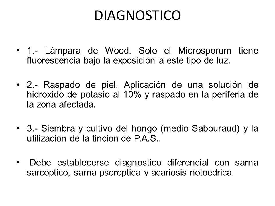 DIAGNOSTICO 1.- Lámpara de Wood. Solo el Microsporum tiene fluorescencia bajo la exposición a este tipo de luz. 2.- Raspado de piel. Aplicación de una