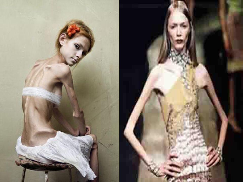 MANIFESTACIONES DE LA ANOREXIA. Manifestaciones de la Anorexia En tu conducta: haces dietas restrictivas, vomitas, usas laxantes y diuréticos, manifie
