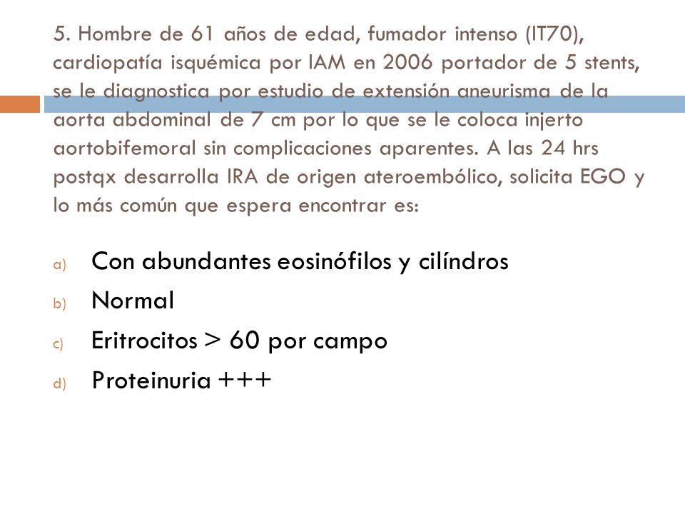 Evaluación de la TFG La creatinina se deriva del metabolismo muscular de creatinina y es variable Es un soluto pequeño y es filtrada 1) Cockcroft-Gault 140 – edad x peso corporal magro (kg) creatinina plasmática (mg/100 ml) x 72 Mujeres 0.85
