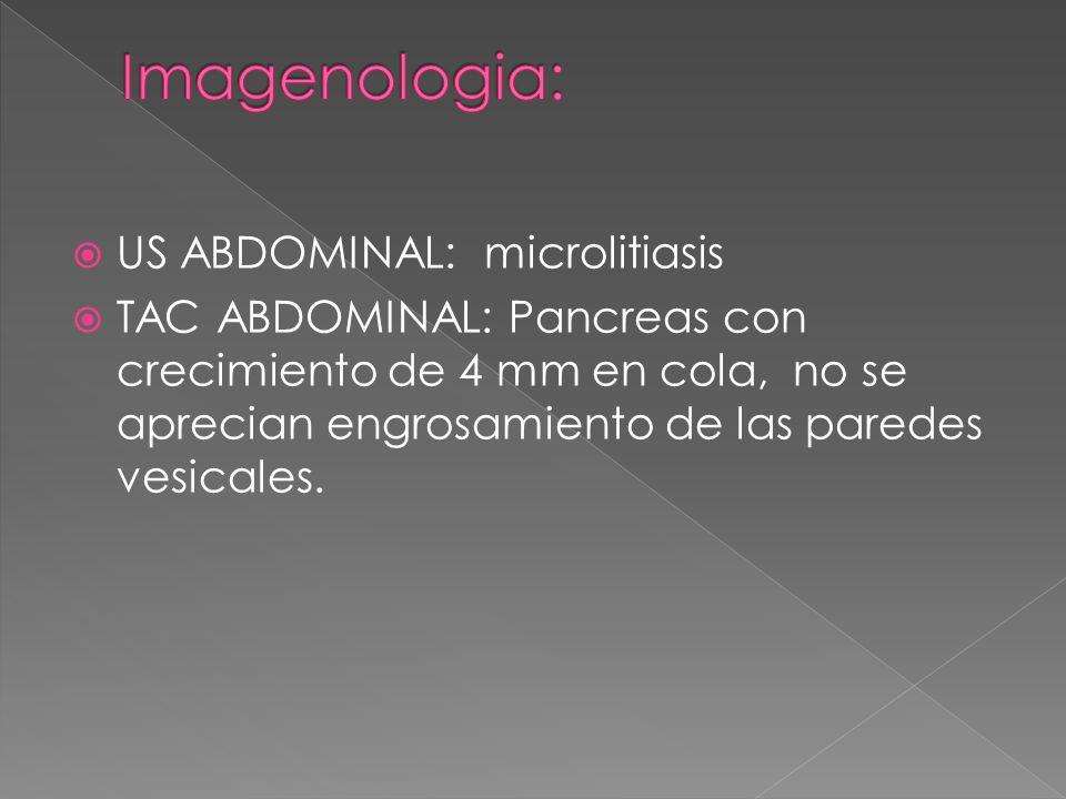 US ABDOMINAL: microlitiasis TAC ABDOMINAL: Pancreas con crecimiento de 4 mm en cola, no se aprecian engrosamiento de las paredes vesicales.