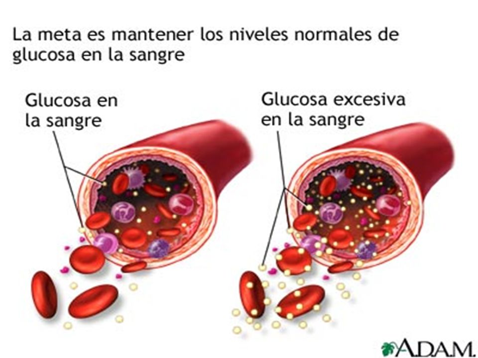 PATOGENIA DIABETES MELLITUS TIPO 1: están implicados tanto factores genéticos como ambientales, que ocasionan una activación inmunológica con destrucc