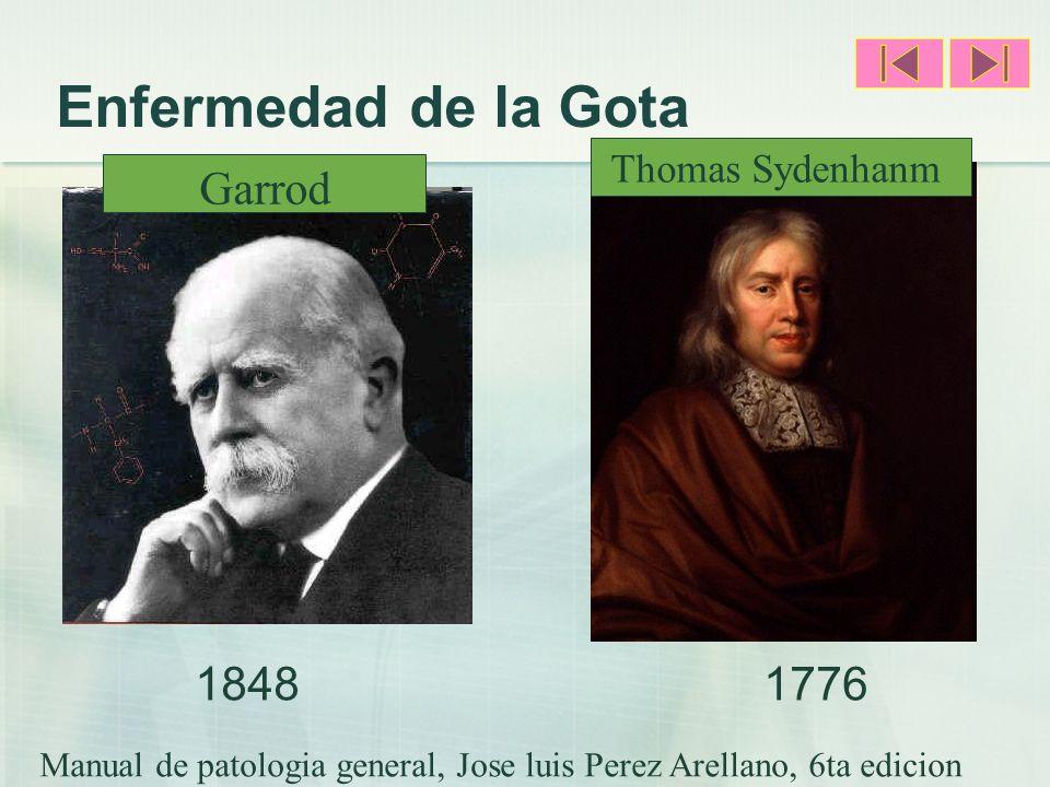 Enfermedad de la Gota 18481776 Garrod Thomas Sydenhanm Manual de patologia general, Jose luis Perez Arellano, 6ta edicion