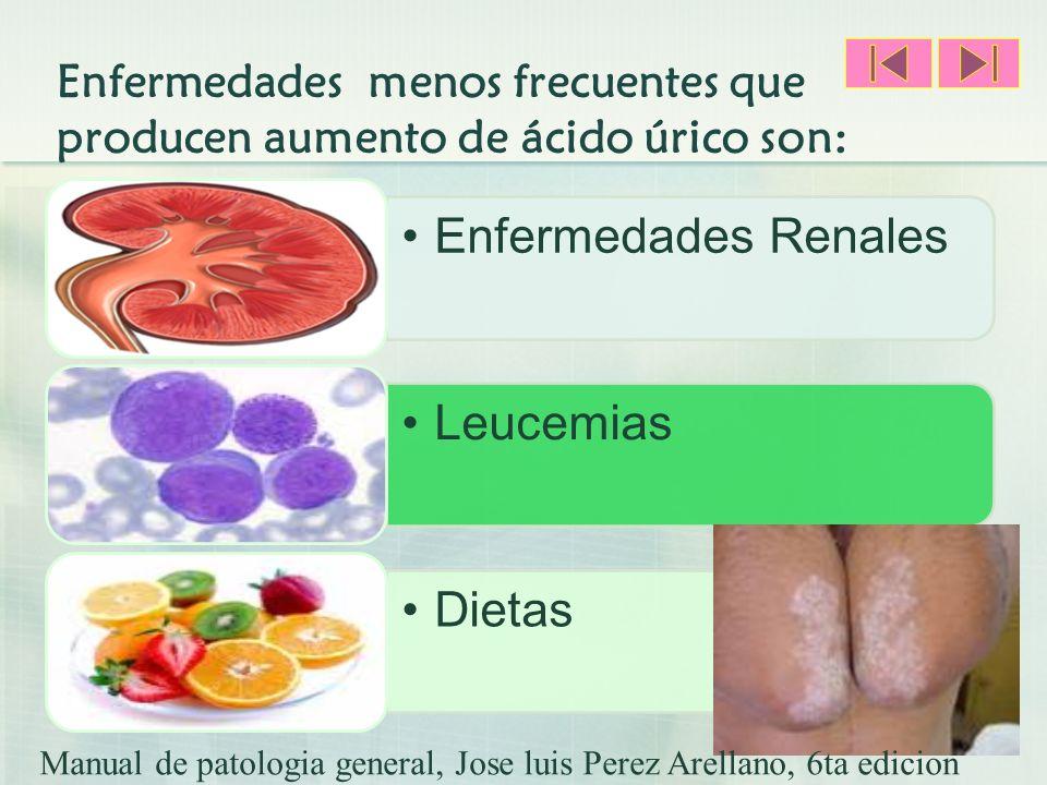 Enfermedades menos frecuentes que producen aumento de ácido úrico son: Enfermedades RenalesLeucemiasDietas Manual de patologia general, Jose luis Pere