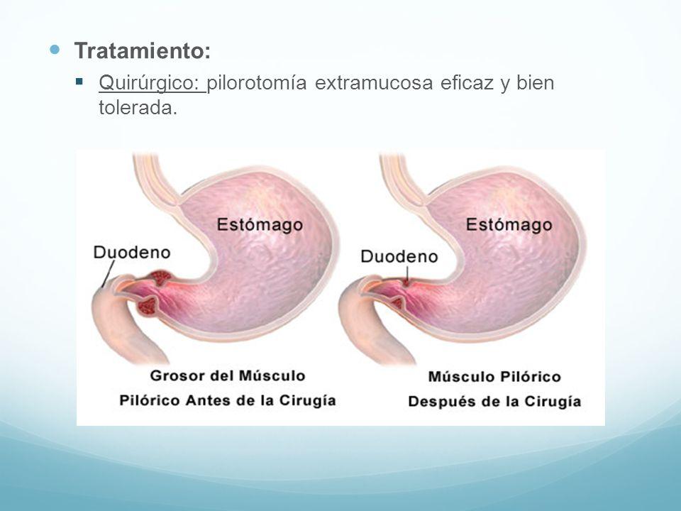 Tratamiento: Quirúrgico: pilorotomía extramucosa eficaz y bien tolerada.
